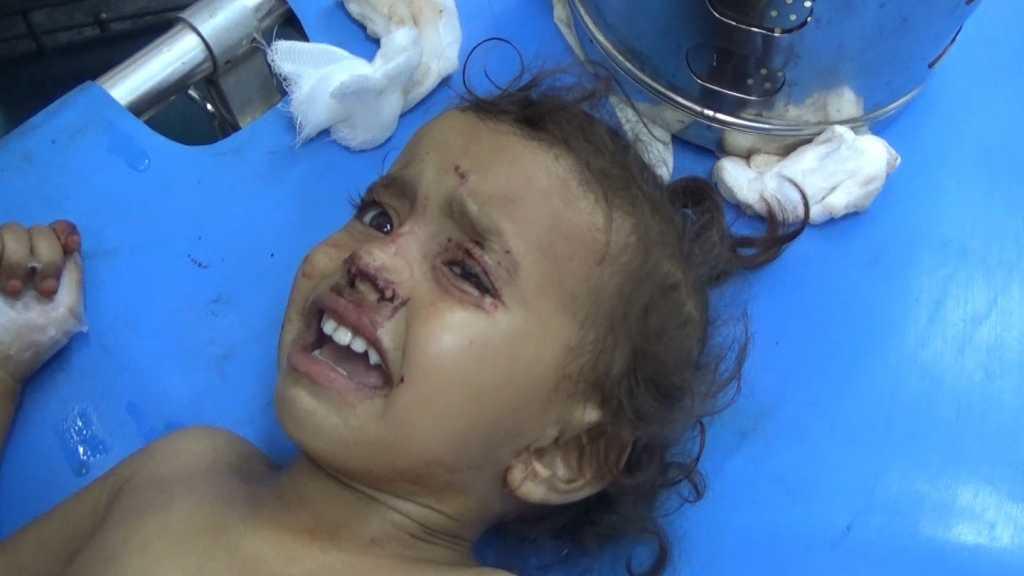بالفيديو | إصابة عدد من الأطفال اليمنيين بقذائف تحالف العدوان في الدريهمي المحاصرة